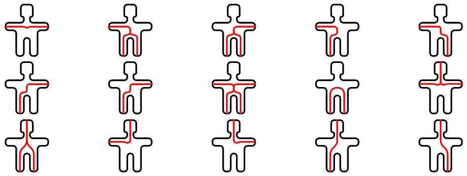 Возможные пути протекания тока через тело человека
